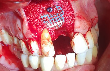 implant courses for general dentist