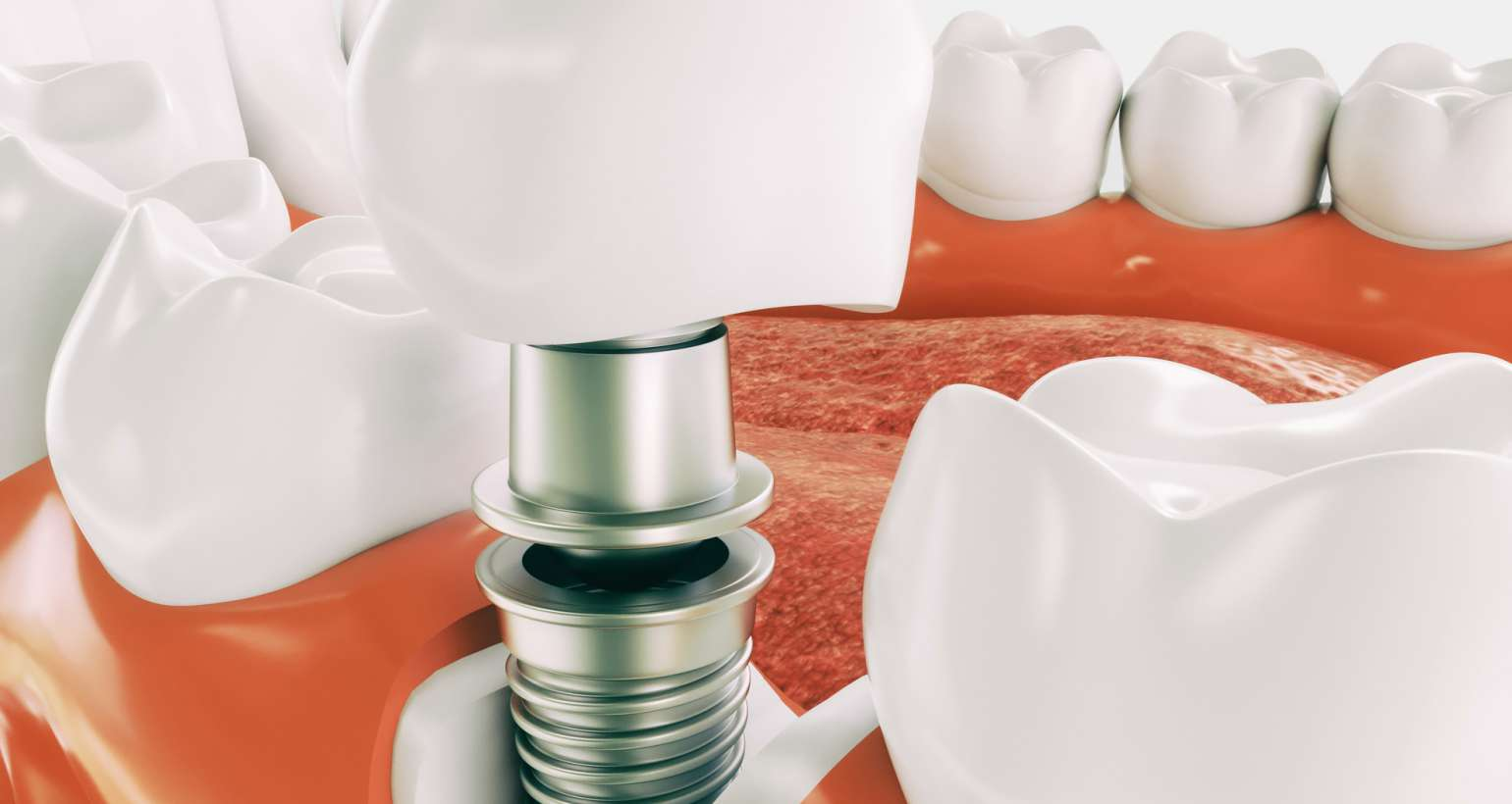 How do you choose the right dental implant training programs?